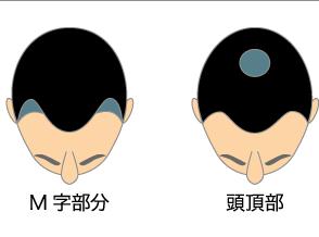 男性型脱毛症(AGA)イメージ図